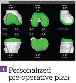 personalized preoperative plan